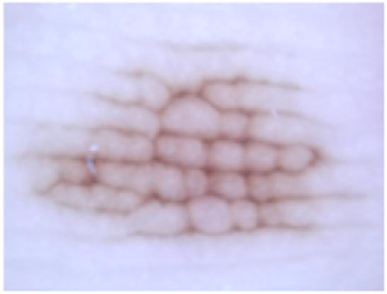 色素性母斑(ほくろ)